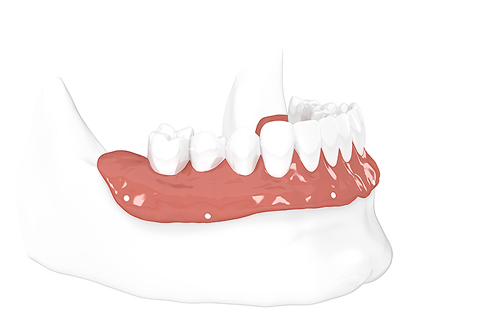 All-on-4® Feste Zähne auf 4 Implantaten: Modell Weichgewebe & Zahnhartsubstanz