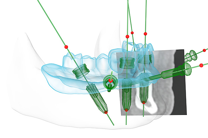 All-on-4® Feste Zähne auf 4 Implantaten: digitale Planung