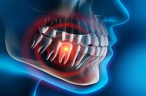 Parodontosebehandlungen