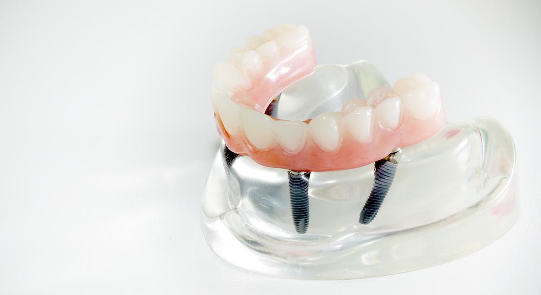 All-on-4® - Fester Zahnersatz auf 4 Implantaten